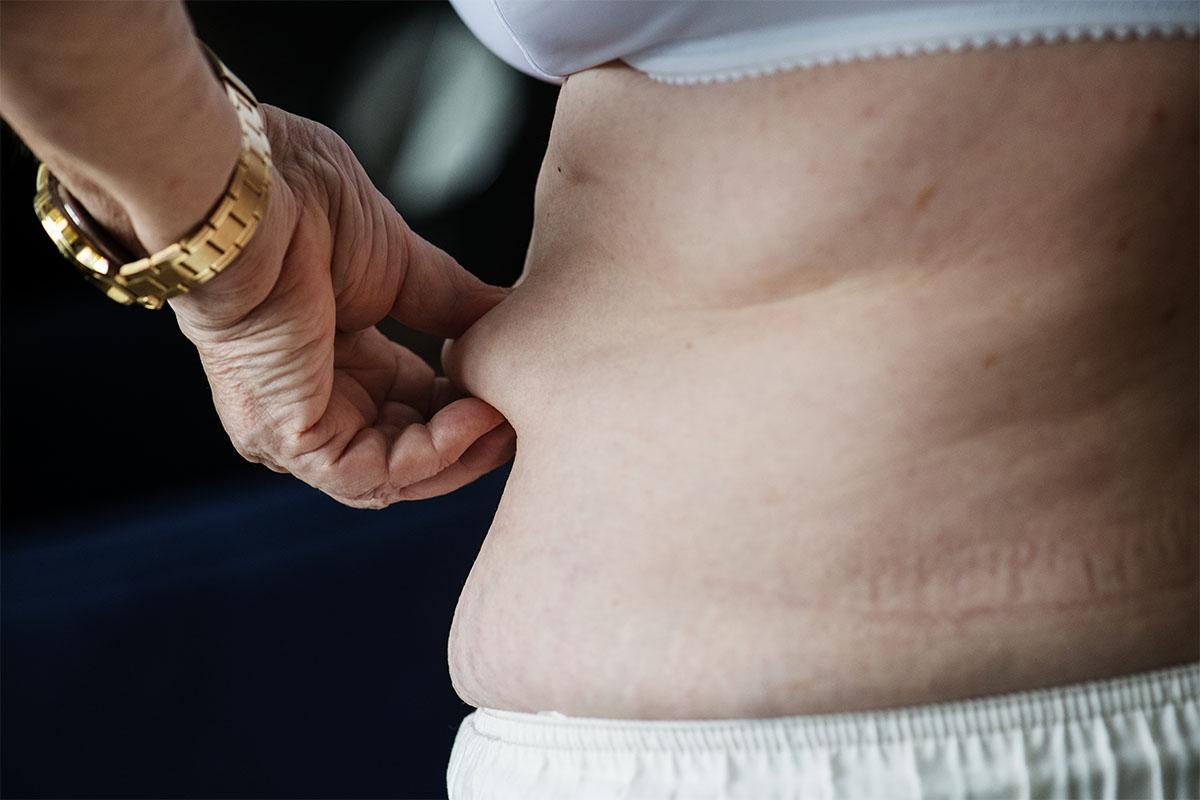 Una donna con cellulite